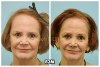 This 76-year-old woman is shown before and after using 82M for her hair loss.   1