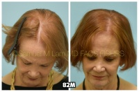 This 76-year-old woman is shown before and after using 82M for her hair loss.   2