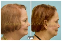 This 76-year-old woman is shown before and after using 82M for her hair loss.   3