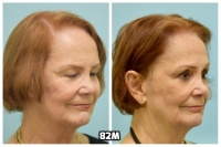 This 76-year-old woman is shown before and after using 82M for her hair loss.   4