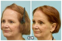 This 76-year-old woman is shown before and after using 82M for her hair loss.   5