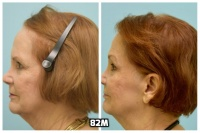 This 76-year-old woman is shown before and after using 82M for her hair loss.   6