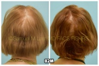 This 76-year-old woman is shown before and after using 82M for her hair loss.   7