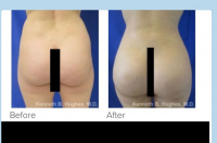Liposuction and Brazilian buttlift with Dr. Kenneth Benjamin Hughes 50