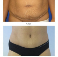 Tummy Tuck with Dr. Kenneth Benjamin Hughes 55
