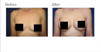 Breast Augmentation with Implants or Fat Transfer with Dr. Kenneth Benjamin Hughes in Los Angeles 63
