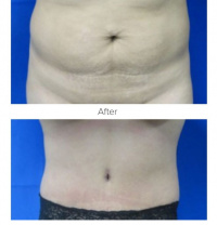 Tummy Tuck with Dr. Kenneth Benjamin Hughes in Los Angeles 65