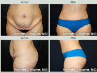 Mommy Makeover with Tummy Tuck with Dr. Kenneth Benjamin Hughes in Los Angeles  143