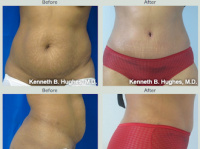 Tummy Tuck with Dr. Kenneth Benjamin Hughes in Los Angeles 10