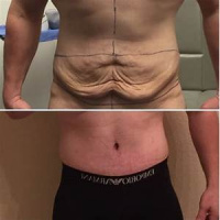 Male tummy tuck with Dr. Kenneth Benjamin Hughes in Los Angeles 12