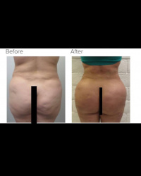 Liposuction and Brazilian buttlift with dead fat or fat death removal with Dr. Kenneth Hughes 34