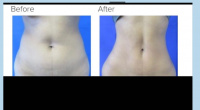 Liposuction with Dr. Kenneth Hughes in Los Angeles 36