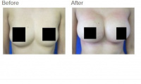 Breast Augmentation with Silicone Breast Implants or Breast Fat Transfer with Dr. Kenneth Hughes 37
