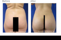 Liposuction and Brazilian buttlift or BBL Revision with Dr. Kenneth Hughes 38