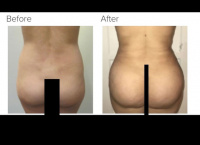 Liposuction and Brazilian buttlift or BBL Revision with Dr. Kenneth Hughes 39