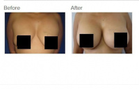 Breast Augmentation with Silicone Breast Implants or Breast Fat Transfer with Dr. Kenneth Hughes 40