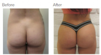 Brazilian Butt Lift with Dr. Kenneth Hughes 42