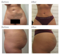 Brazilian Butt Lift with Dr. Kenneth Hughes 43