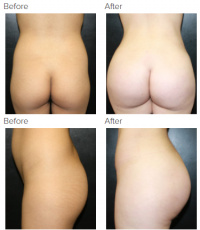 Brazilian Butt Lift Los Angeles with Dr. Kenneth Hughes 44