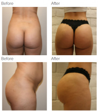 Brazilian Butt Lift Los Angeles with Dr. Kenneth Hughes 46