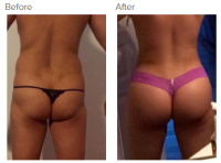 Brazilian Butt Lift Los Angeles with Dr. Kenneth Hughes 49