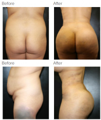 Brazilian Butt Lift Los Angeles with Dr. Kenneth Hughes 51