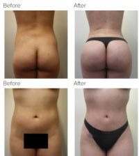 Brazilian Butt Lift Los Angeles with Dr. Kenneth Hughes with dead fat or fat death removal 53