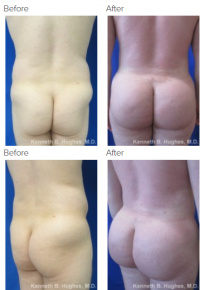 Brazilian Butt Lift Los Angeles with Dr. Kenneth Hughes 56