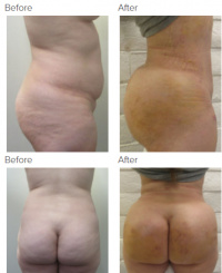 Brazilian Butt Lift Los Angeles with Dr. Kenneth Hughes 57