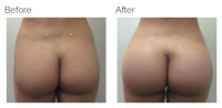Butt Implants Los Angeles with Dr. Kenneth Hughes 59