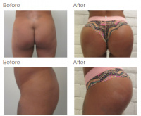 Butt Implants Los Angeles with Dr. Kenneth Hughes 62