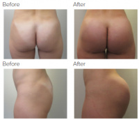 Butt Implants Los Angeles with Dr. Kenneth Hughes 66