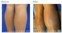 Calf Augmentation & Implants Los Angeles with Dr. Kenneth Hughes 74