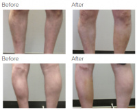 Calf Augmentation & Implants Los Angeles with Dr. Kenneth Hughes 75