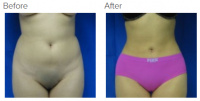 Liposuction Los Angeles with Dr. Kenneth Hughes 76