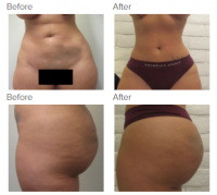 Liposuction Los Angeles with Dr. Kenneth Hughes 77
