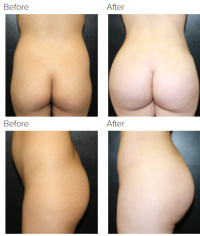 Liposuction Los Angeles with Dr. Kenneth Hughes 78