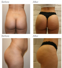 Liposuction Los Angeles with Dr. Kenneth Hughes 79