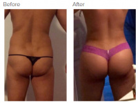 Liposuction Los Angeles with Dr. Kenneth Hughes 80