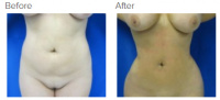 Liposuction Los Angeles with Dr. Kenneth Hughes 81
