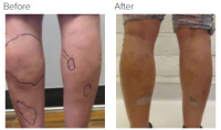 Liposuction Revision & Cellulite Reduction Los Angeles with Dr. Kenneth Hughes 83