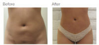 Liposuction Revision & Cellulite Reduction Los Angeles with Dr. Kenneth Hughes 85