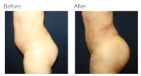 Liposuction Revision & Cellulite Reduction Los Angeles with Dr. Kenneth Hughes 87