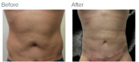 Liposuction Revision & Cellulite Reduction Los Angeles with Dr. Kenneth Hughes 88