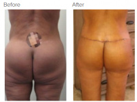 Liposuction Revision & Cellulite Reduction Los Angeles with Dr. Kenneth Hughes 89