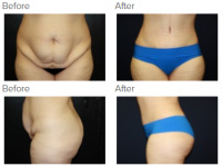Tummy Tuck Los Angeles with Dr. Kenneth Benjamin Hughes 97