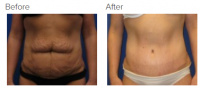 Tummy Tuck Los Angeles with Dr. Kenneth Benjamin Hughes 99