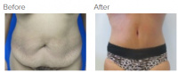 Tummy Tuck Los Angeles with Dr. Kenneth Hughes 101