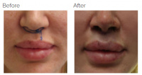 Lip Lift Los Angeles with Dr. Kenneth Hughes 105