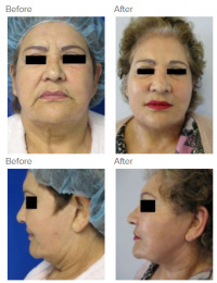 Brow Lift Los Angeles with Dr. Kenneth Hughes 106